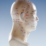 Honest Answers to Your Top Acupuncture Questions
